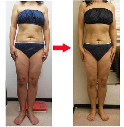 40代になり太りやすくなってしまっていた女性でも、一ヶ月で-8kgを達成