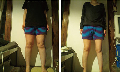 むくみを改善させたことで、自然と脂肪も落ちて行きました。